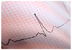 Heart attack symptoms: Know what's a medical emergency